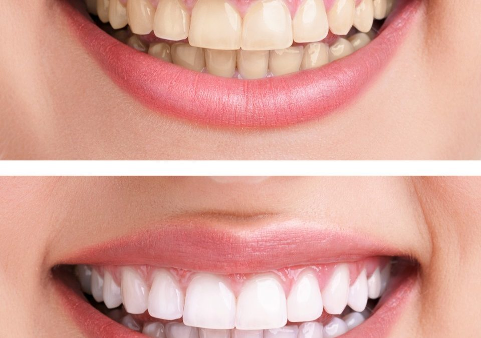 Professional Whitening Offers an Effective Way to Restore Your Smile's Luster