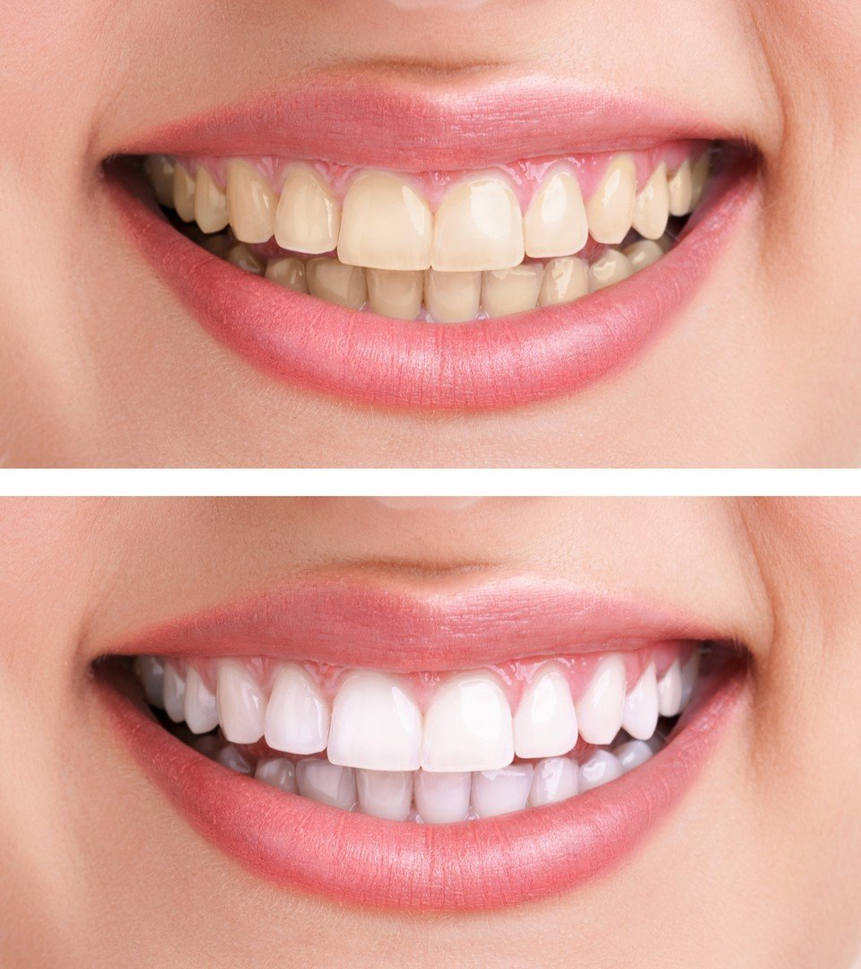 Cosmetic Dentistry - West Cobb Dentistry in Cobb County
