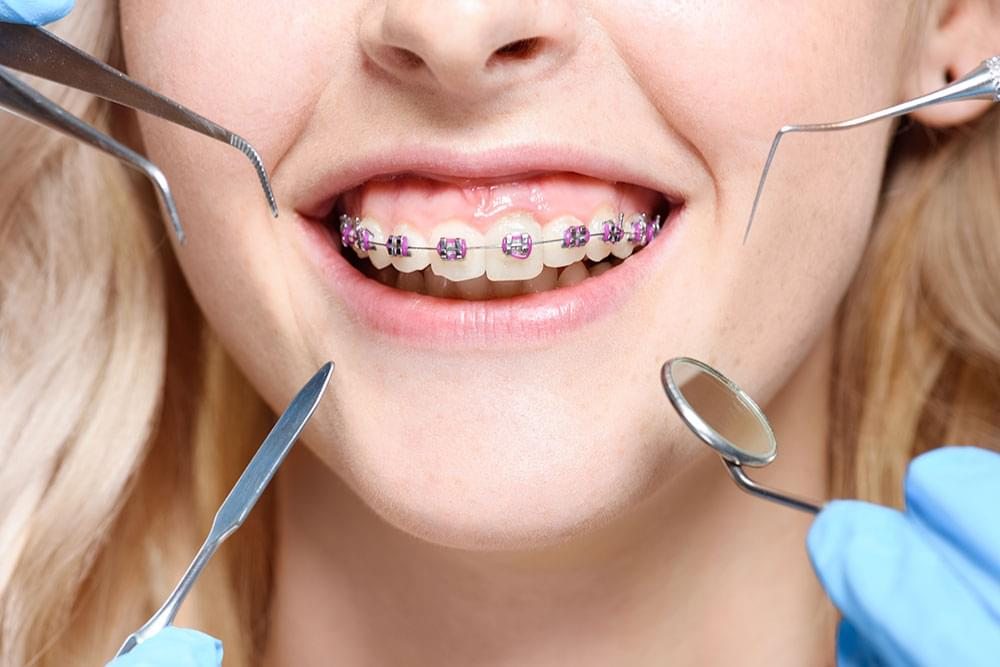Top Benefits Of Orthodontic Treatment • West Cobb Dentistry?770-794-3332